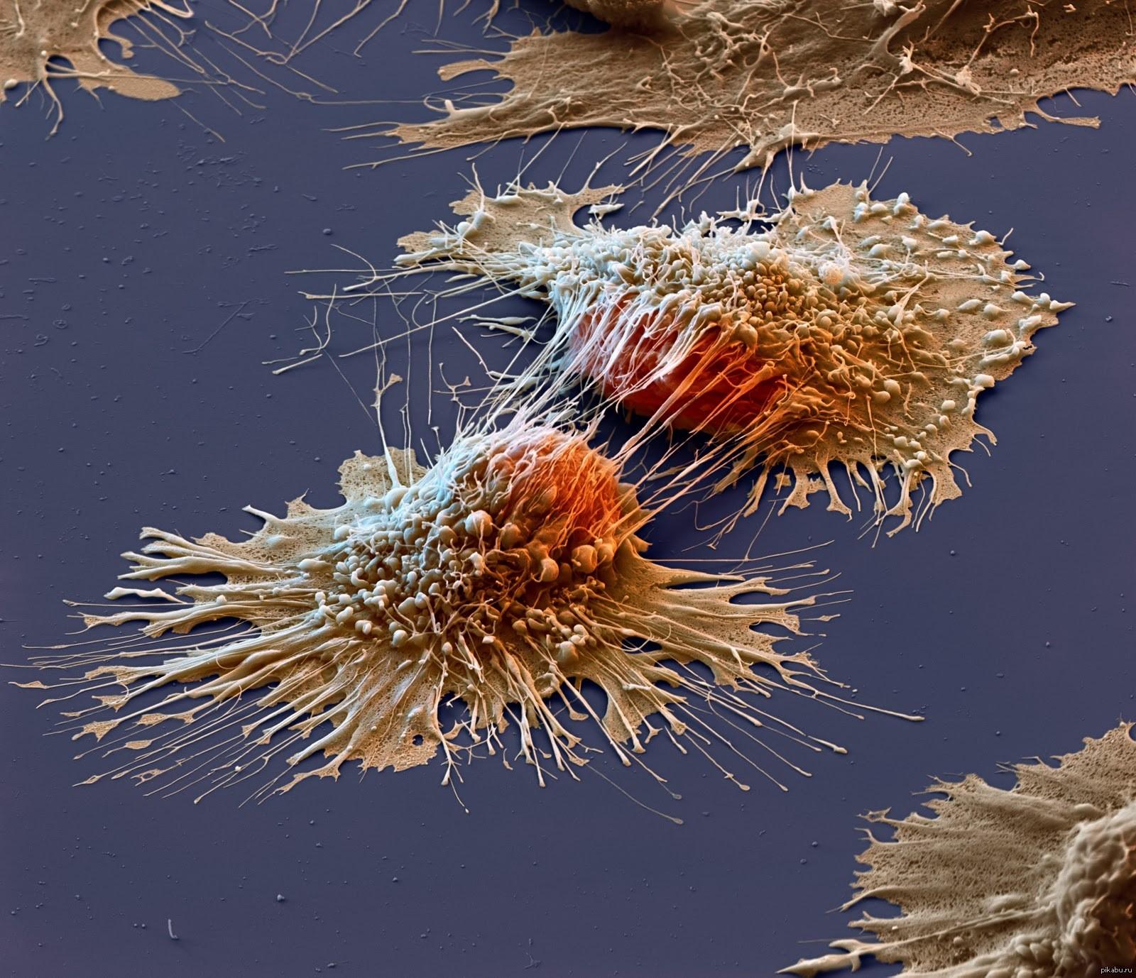 Ученые научились определять точную причину раковой опухоли по ее ДНК